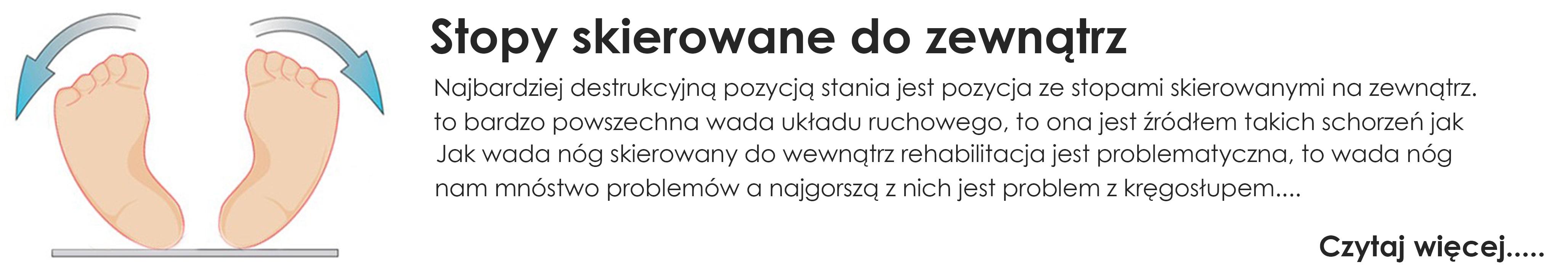 https://dlastopy.pl/blog/news/stopy-skierowane-do-zewnatrz